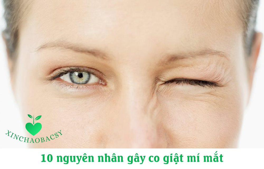 Co giật mí mắt – 10 nguyên nhân phổ biến và giải pháp loại bỏ nhanh